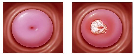 哪些是宫颈癌的症状?