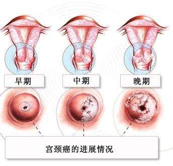 如何有效预防宫颈癌?