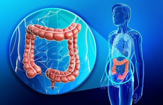 息肉会不会变成结直肠癌?