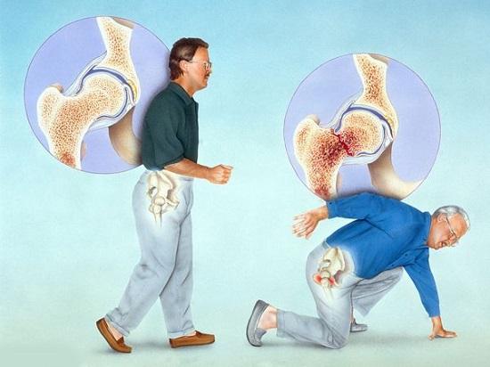 怎么预防骨质疏松?