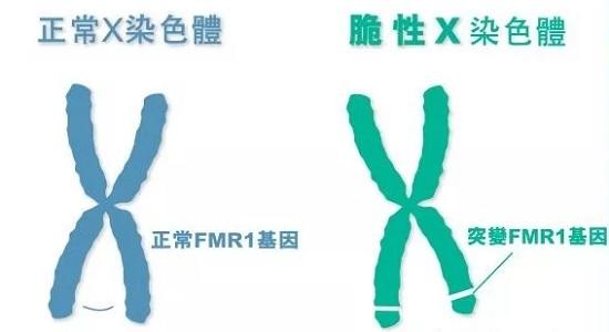 什么是X染色体脆折症?