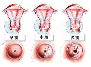感染了HPV会怎么样?