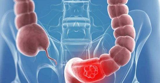 为什么大肠癌发现就是晚期?
